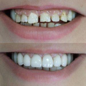 viniry-bez-obtachivanija-zubov-1024x1024