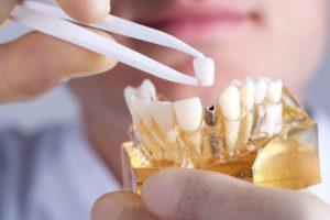 dental-prosthetic