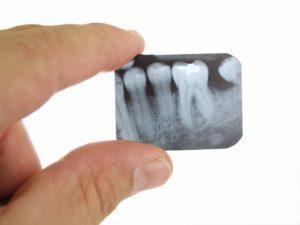 rentgen-rentgenografiya-zuba